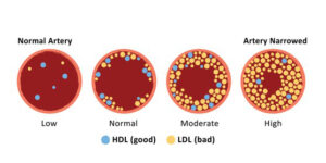 cholesterol c27h46o artery hdl ldl 260nw 1631498959